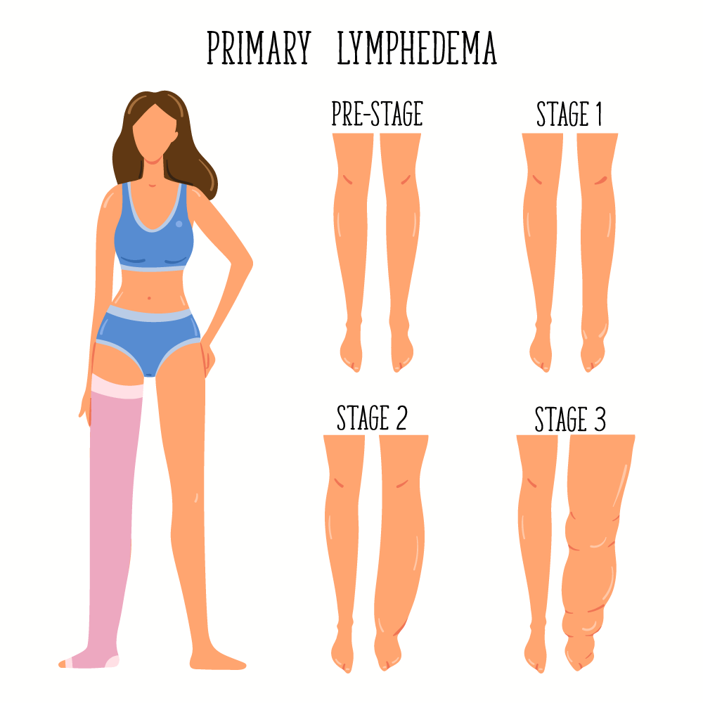 "Diagram: ""Primary Lymphedema."" Woman with leg wrap. Four stages: Pre-Stage: equal-size legs. Stages 1-3 show increasing swelling of one leg."